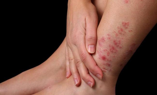 Dermolios – bei Hautproblemen - comment – anwendung – Nebenwirkungen