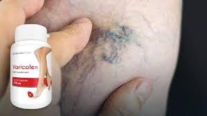 Varicolen – für Krampfadern - Nebenwirkungen – in apotheke – test