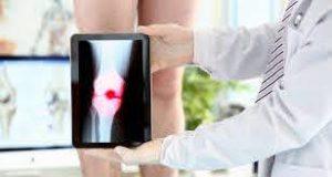 MC Gausse - magnetischer Knieverband - Nebenwirkungen - erfahrungen - comments