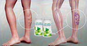 Solvenin - für Krampfadern - Deutschland - in apotheke - bestellen