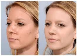Beauty 360 - für die Gesichtshaut - preis - Aktion - forum