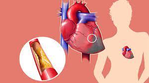 Cardione - inhaltsstoffe - anwendung - bewertungen - erfahrungsberichte