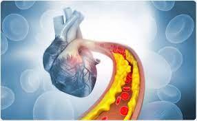 Cardione - bei Amazon - preis - forum - bestellen