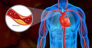Cardione - Stiftung Warentest - erfahrungen - test - bewertung